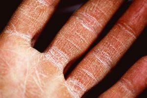 benefits of juicing - skin healing