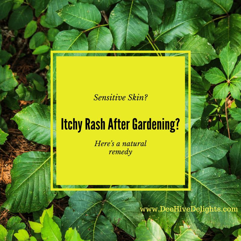 natural Remedy Skin Rash after Gardening